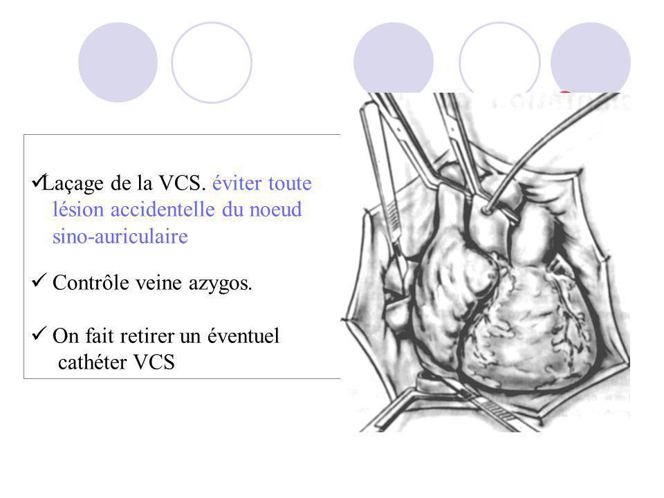 Laçage de la VCS. éviter toute