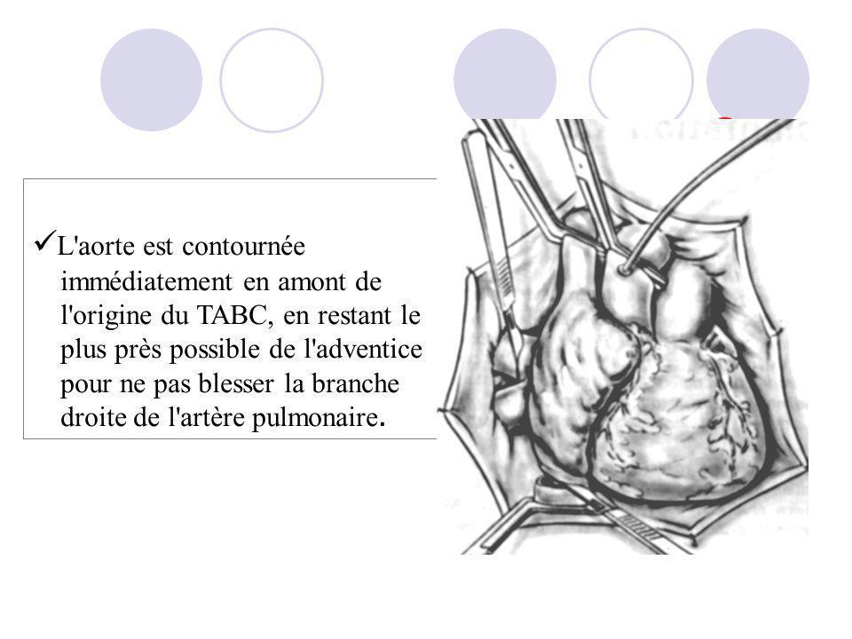 L aorte est contournée immédiatement en amont de