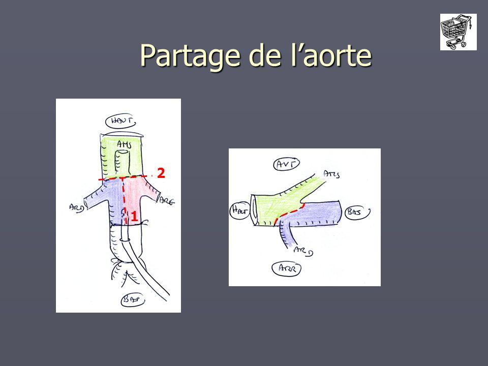 Partage de l'aorte 2 1
