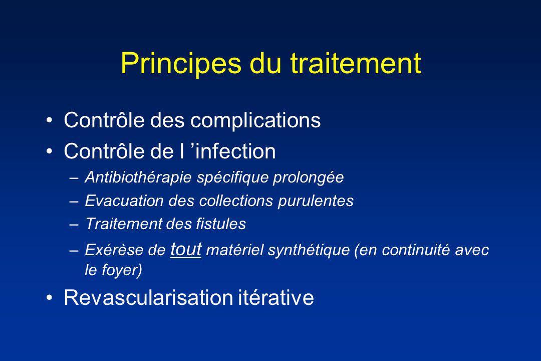 Principes du traitement