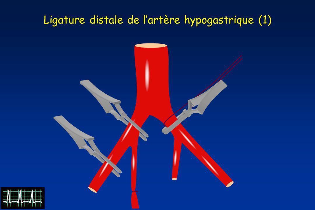 Ligature distale de l'artère hypogastrique (1)