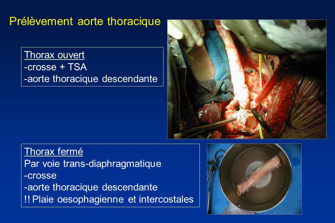 Prélèvement aorte thoracique