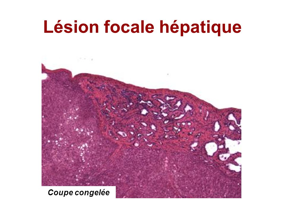 Lésion focale hépatique