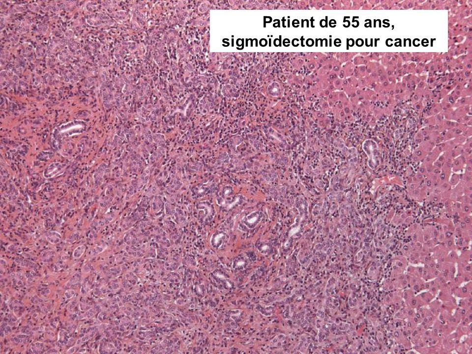 Patient de 55 ans, sigmoïdectomie pour cancer