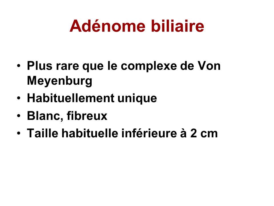 Adénome biliaire Plus rare que le complexe de Von Meyenburg