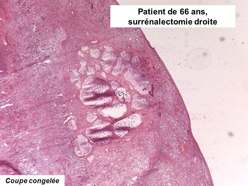 Patient de 66 ans, surrénalectomie droite