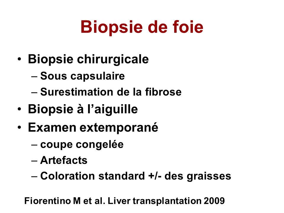 Biopsie de foie Biopsie chirurgicale Biopsie à l'aiguille