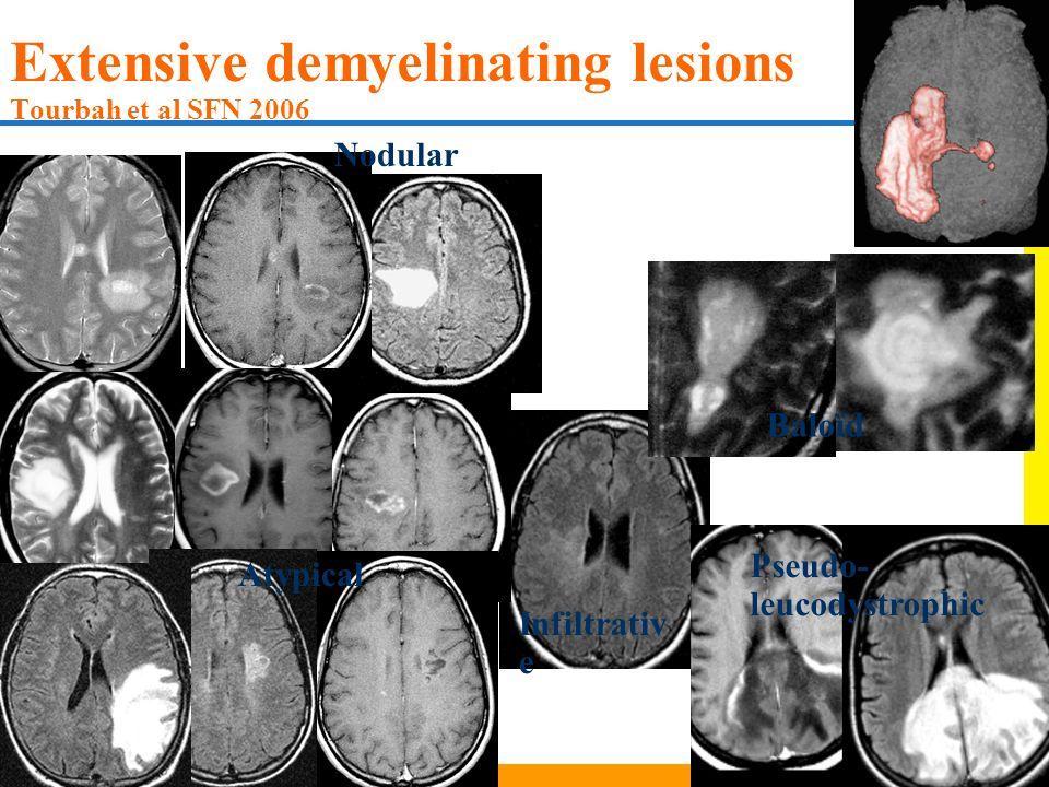 Extensive demyelinating lesions Tourbah et al SFN 2006