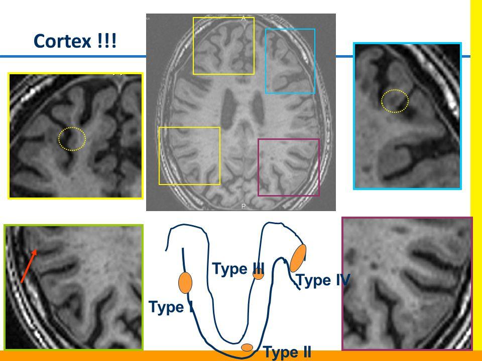 Cortex !!! Type III Type IV Type I Type II