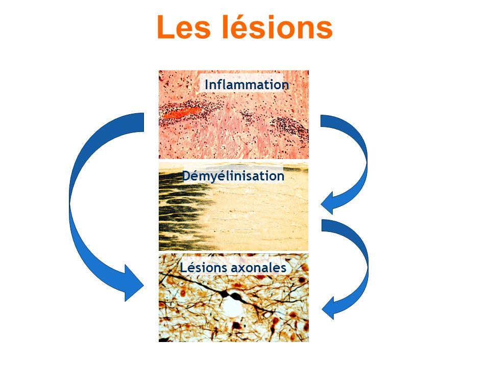 Les lésions Inflammation Démyélinisation Lésions axonales