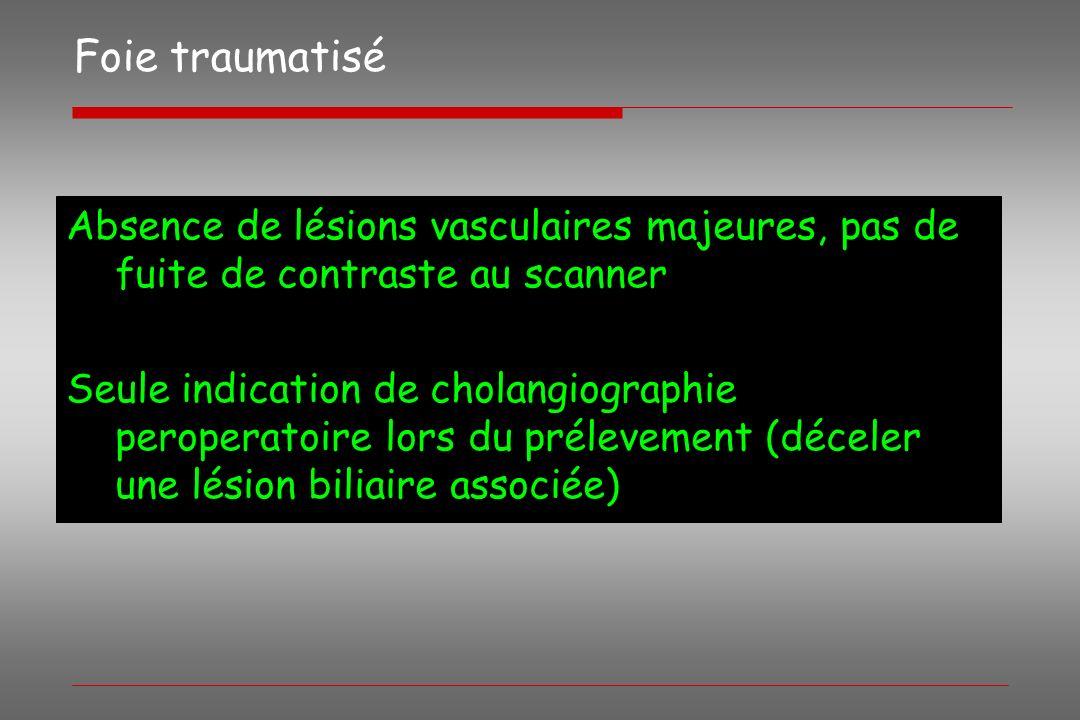 Foie traumatisé Absence de lésions vasculaires majeures, pas de fuite de contraste au scanner.