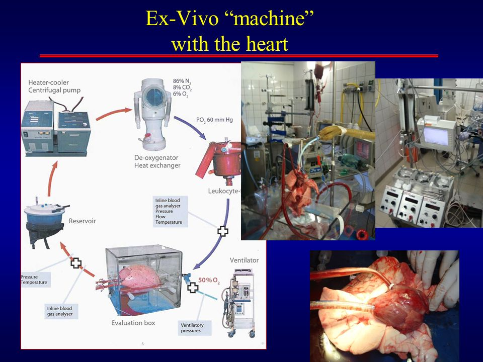 Ex-Vivo machine with the heart