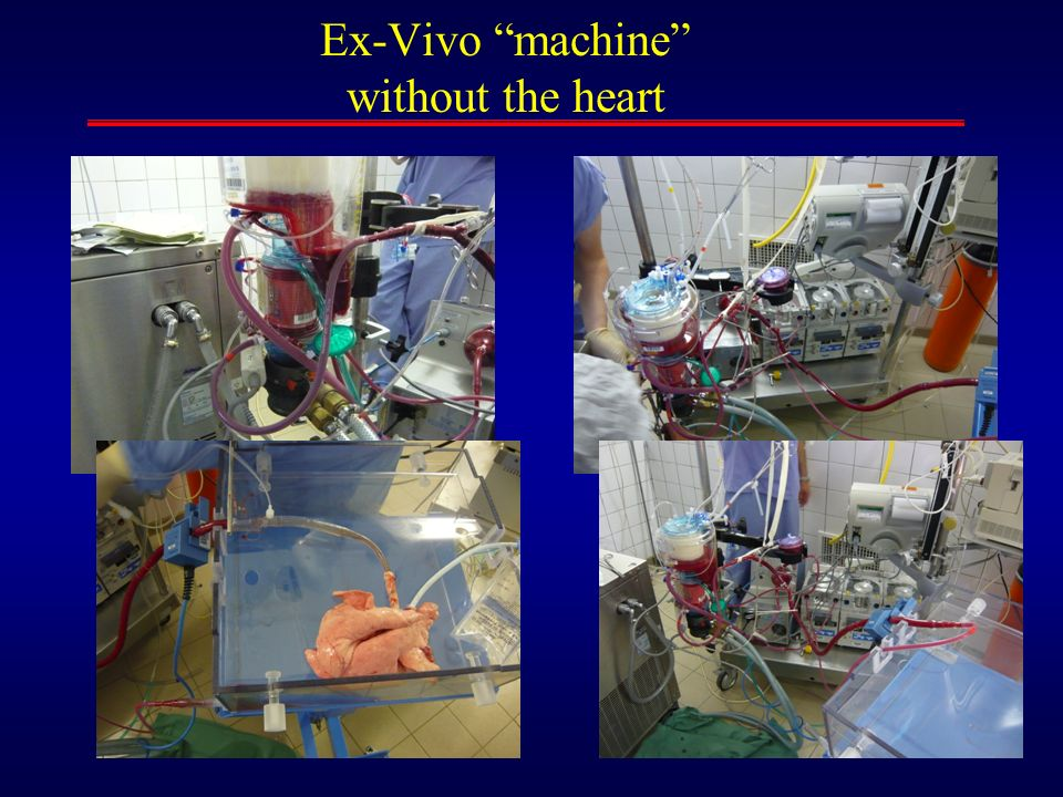 Ex-Vivo machine without the heart