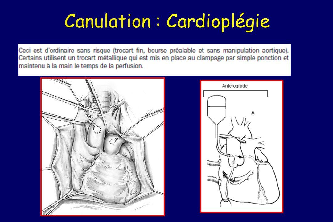 Canulation : Cardioplégie