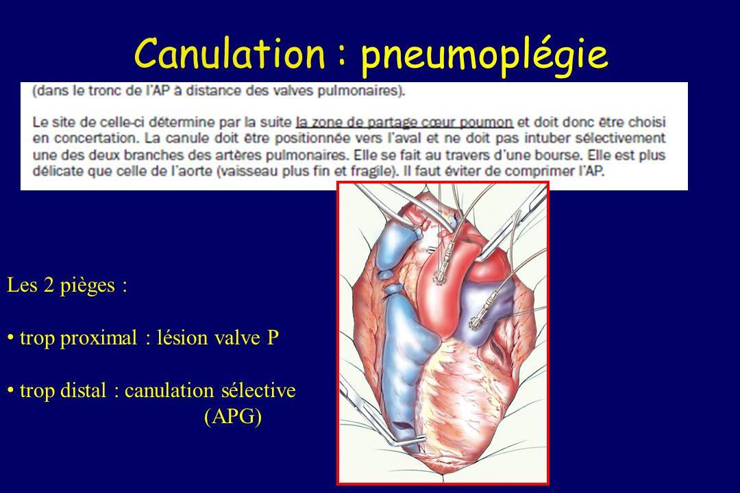 Canulation : pneumoplégie