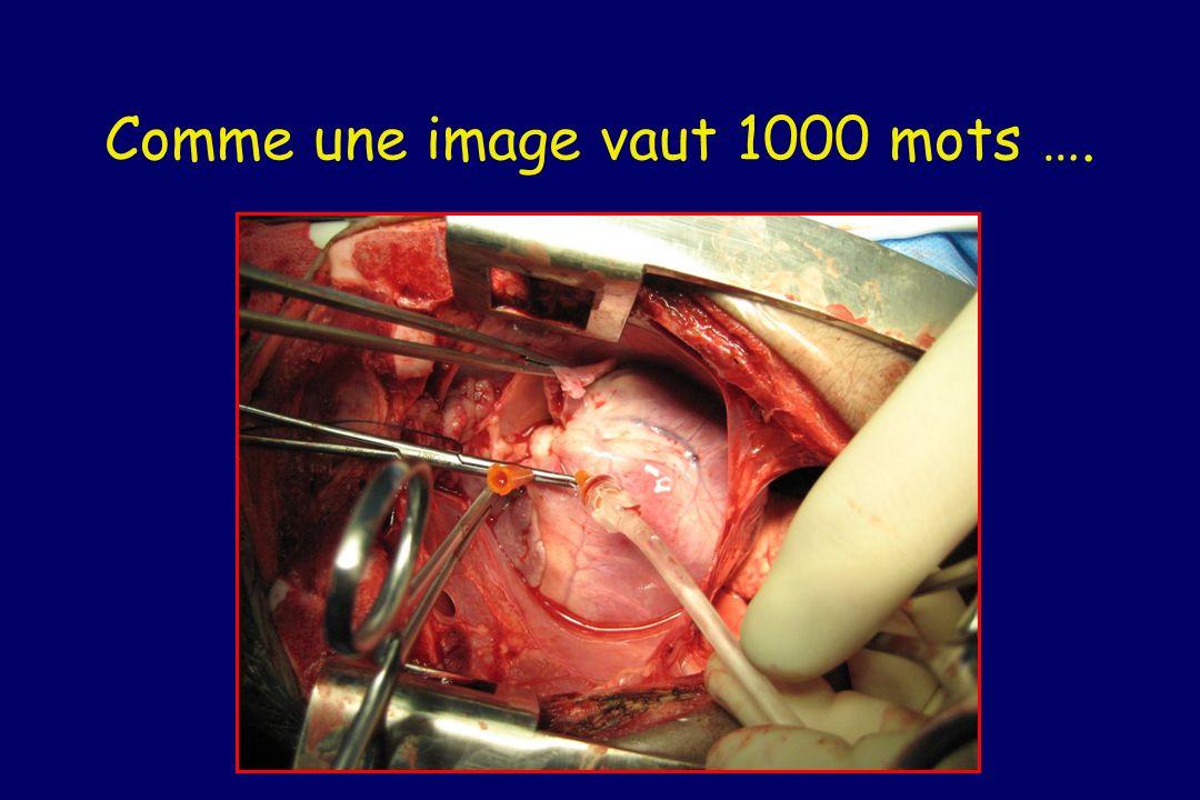 Comme une image vaut 1000 mots ….