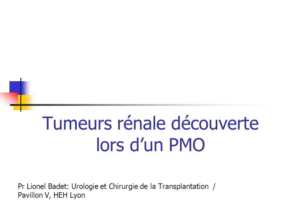 Tumeurs rénale découverte lors d'un PMO
