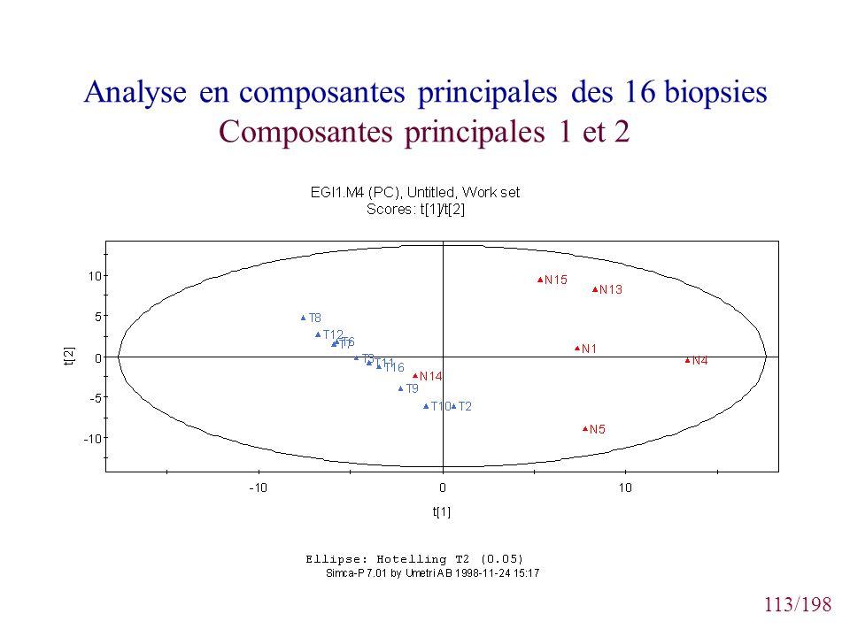 Analyse en composantes principales des 16 biopsies Composantes principales 1 et 2