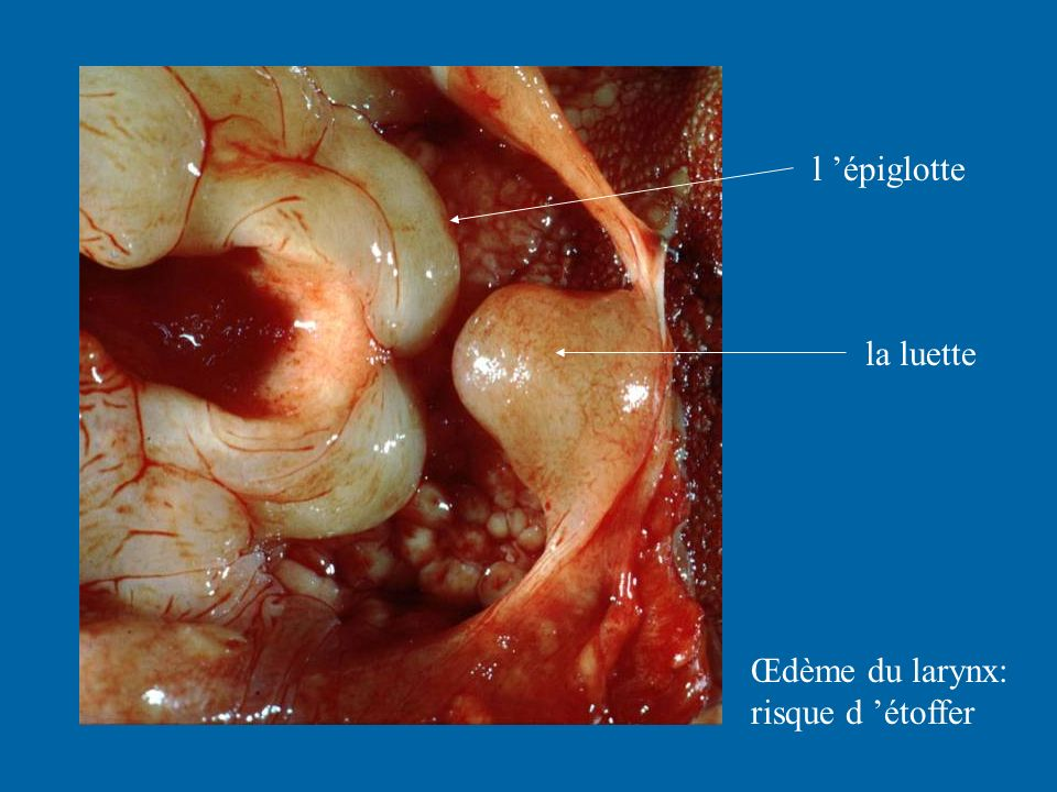 l 'épiglotte la luette Œdème du larynx: risque d 'étoffer
