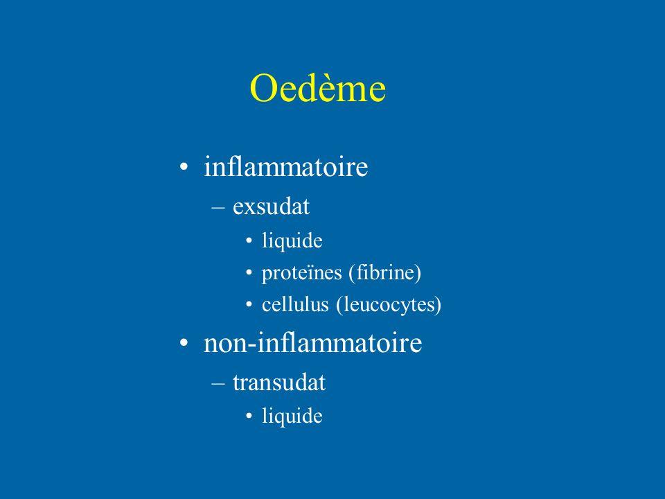 Oedème inflammatoire non-inflammatoire exsudat transudat liquide