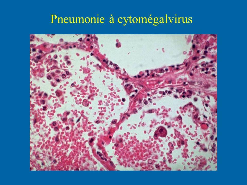 Pneumonie à cytomégalvirus