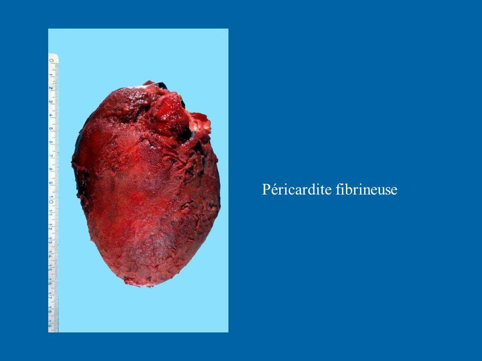 Péricardite fibrineuse