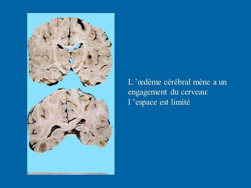 L 'œdème cérébral mène a un engagement du cerveau: l 'espace est limité