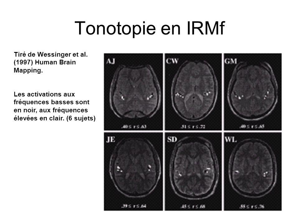 Tonotopie en IRMf Tiré de Wessinger et al. (1997) Human Brain Mapping.