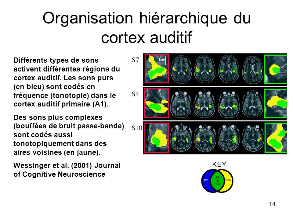Organisation hiérarchique du cortex auditif