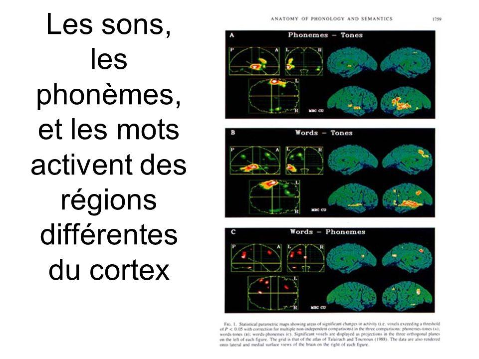 Les sons, les phonèmes, et les mots activent des régions différentes du cortex