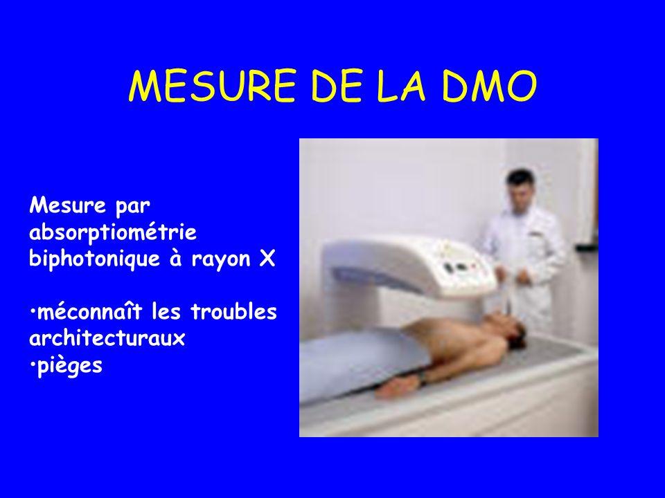 MESURE DE LA DMO Mesure par absorptiométrie biphotonique à rayon X