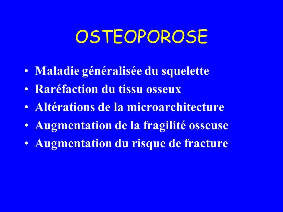 OSTEOPOROSE Maladie généralisée du squelette