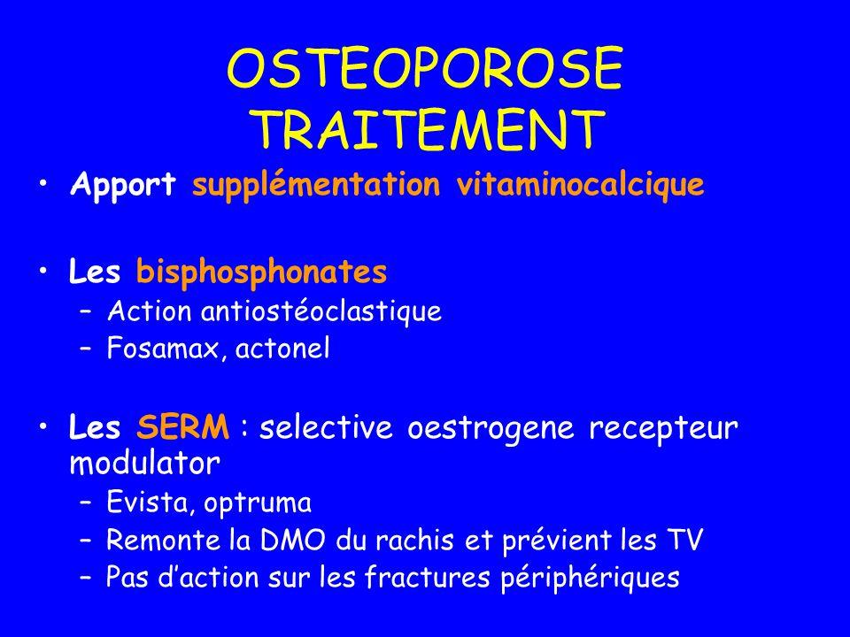 OSTEOPOROSE TRAITEMENT