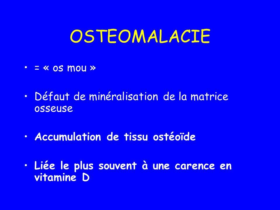 OSTEOMALACIE = « os mou »
