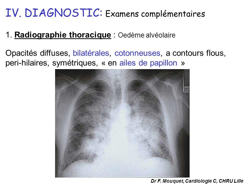 IV. DIAGNOSTIC: Examens complémentaires