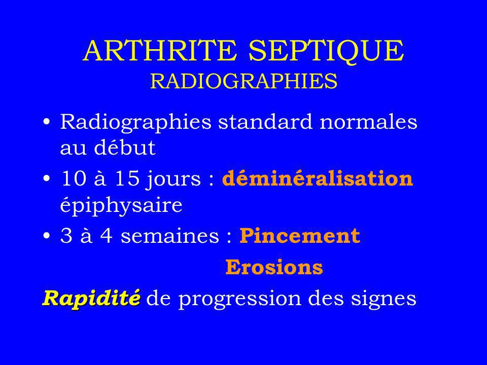 ARTHRITE SEPTIQUE RADIOGRAPHIES