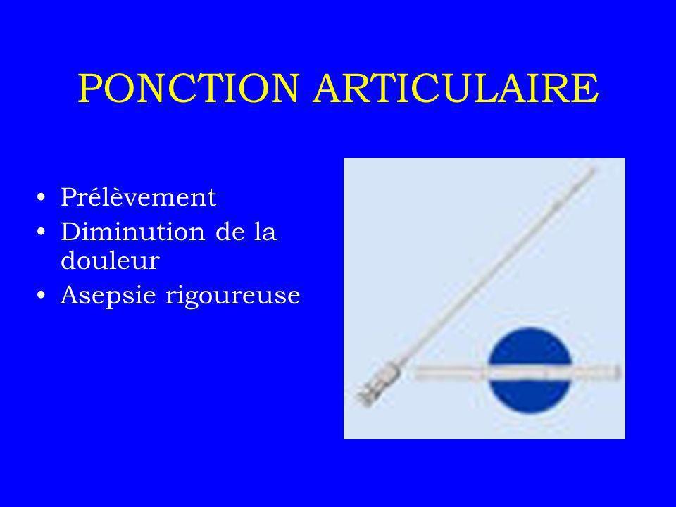 PONCTION ARTICULAIRE Prélèvement Diminution de la douleur