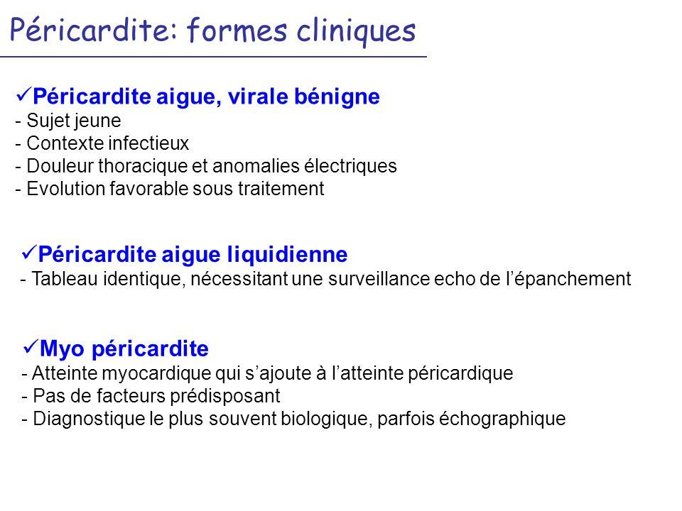 Péricardite: formes cliniques