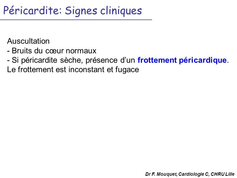 Péricardite: Signes cliniques