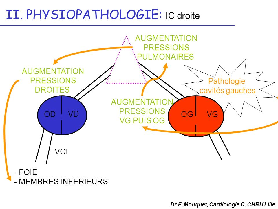 II. PHYSIOPATHOLOGIE: IC droite