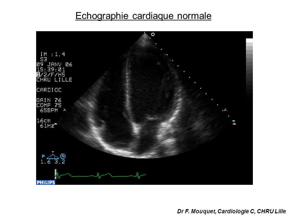 Echographie cardiaque normale