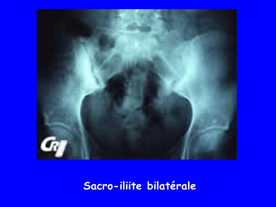 Sacro-iliite bilatérale
