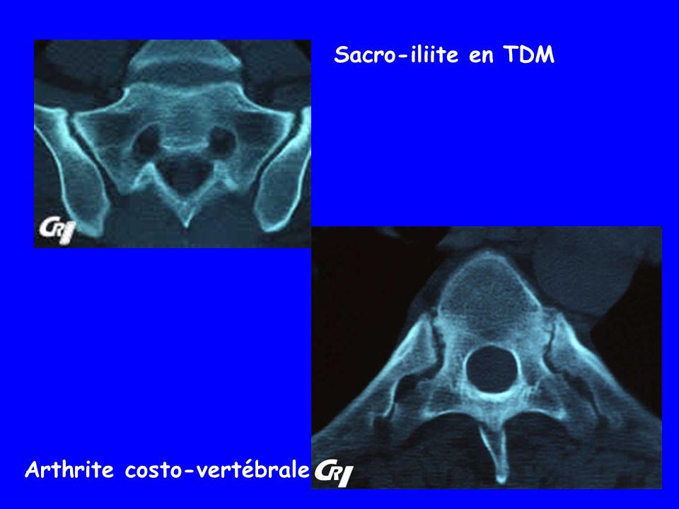 Sacro-iliite en TDM Arthrite costo-vertébrale