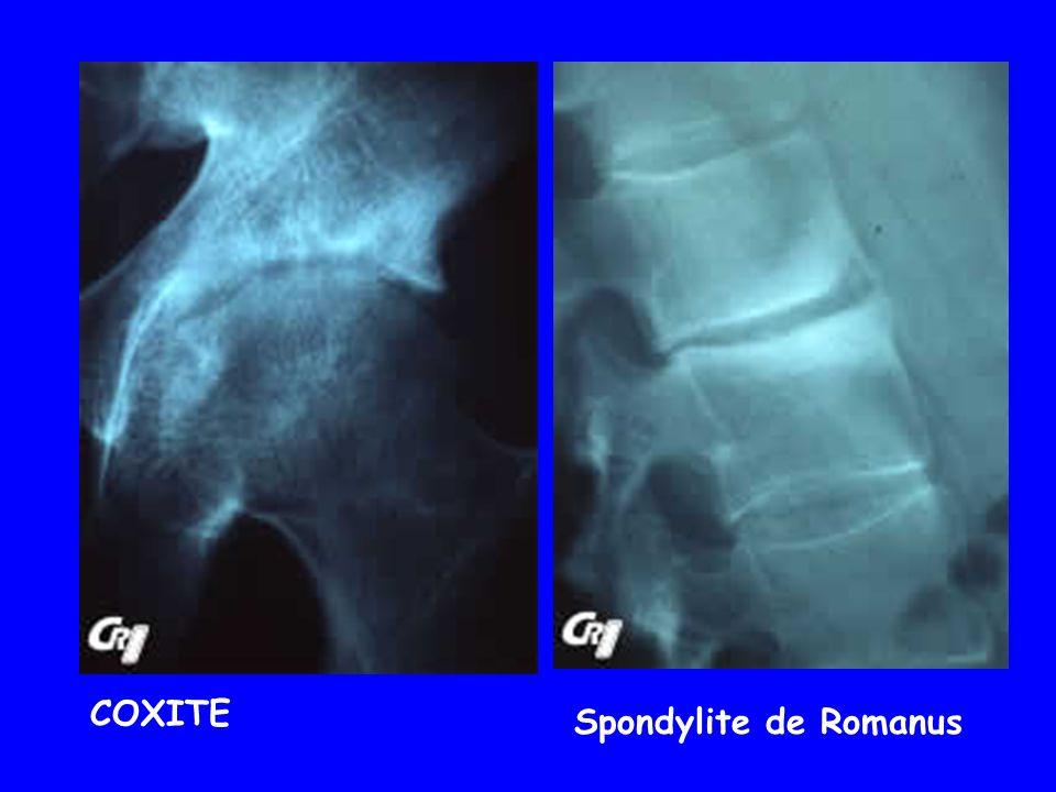 COXITE Spondylite de Romanus
