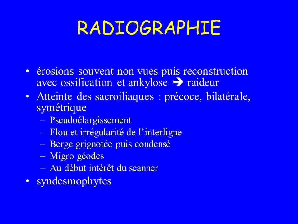 RADIOGRAPHIEérosions souvent non vues puis reconstruction avec ossification et ankylose  raideur.