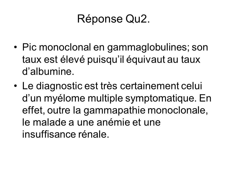 Réponse Qu2. Pic monoclonal en gammaglobulines; son taux est élevé puisqu'il équivaut au taux d'albumine.
