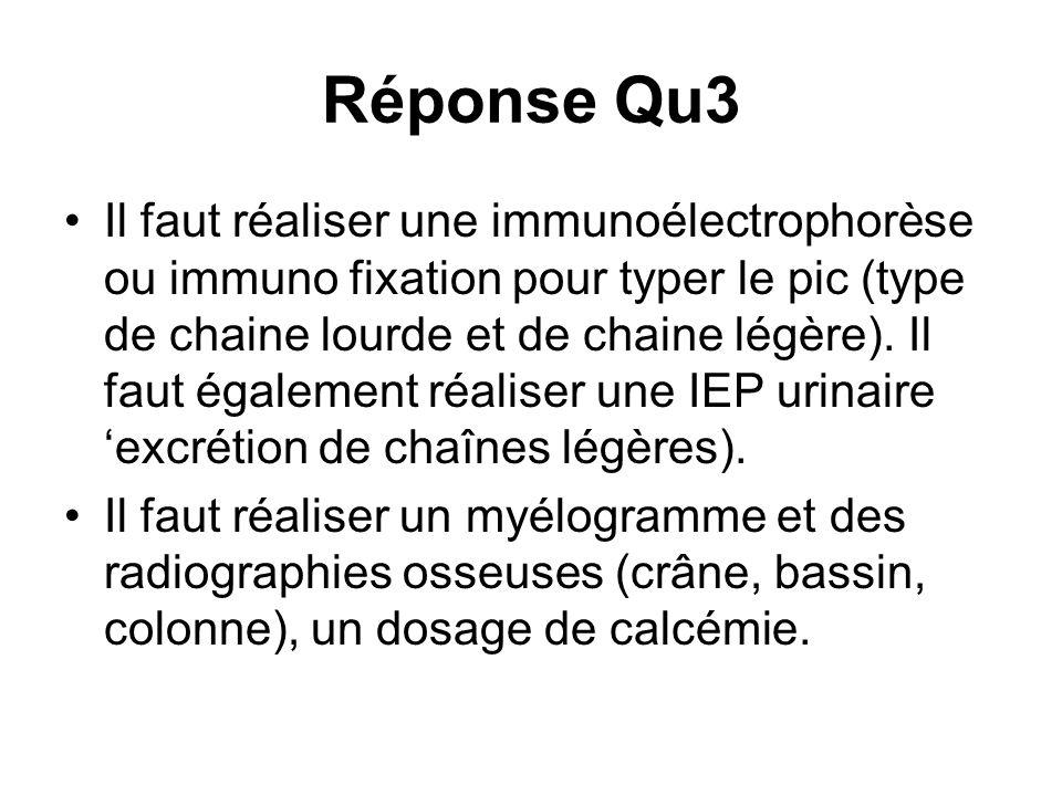 Réponse Qu3
