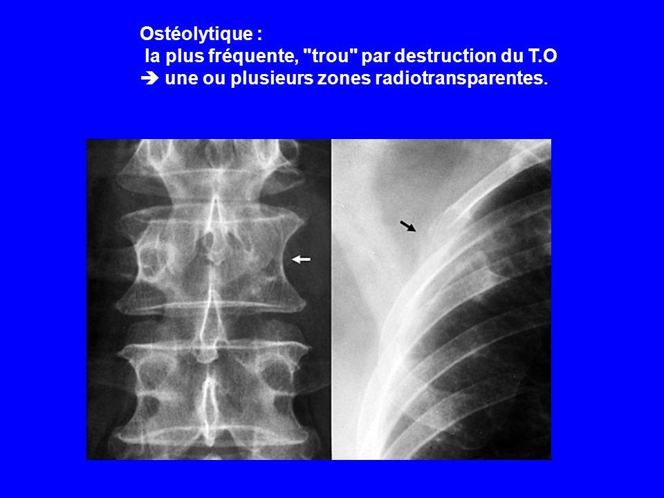 Ostéolytique : la plus fréquente, trou par destruction du T.O.