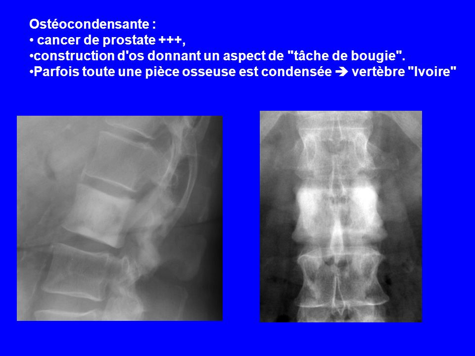 Ostéocondensante : cancer de prostate +++, construction d os donnant un aspect de tâche de bougie .