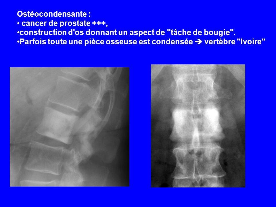 Ostéocondensante :cancer de prostate +++, construction d os donnant un aspect de tâche de bougie .